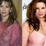 Melissa Gilbert has had Botox injections and neck lift. Her plastic surgeries also includes breast and cheek augmentation, nose job and lip filler. Melissa Gilbert, Neck Lift, Celebrity Plastic Surgery, Botox Injections, Cosmetic Procedures, Lip Fillers, In Cosmetics, Celebrity Photos, Things To Come