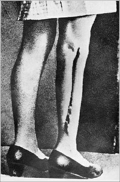 """Kasia was a Polish """"Rabbit"""". The Rabbits were a group of Polish girls operated on by Herta Oberheuser at Ravensbruck. Part of the girls' leg bones and muscles were removed and they went through sulfinamide experiments. Maquillage Horrible, Crime, The Third Reich, Second World, Women In History, World War Two, Historical Photos, Wwii, Fotografia"""