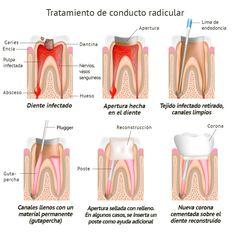 Endodoncia - Clinica Dental el ratoncito Pérez