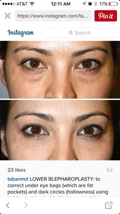 Lower blepharoplasty before and after.