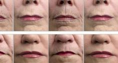 Homemade Natural Wrinkle Removers: http://positivemed.com/2013/04/06/homemade-natural-wrinkle-removers/
