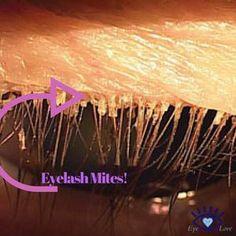 Demodex: What You Need To Know About Eyelash Mites Itchy Eyelids, Dry Eye Symptoms, Eyelashes, Physiology, Anatomy, Blog, Remedies, Wellness, Community