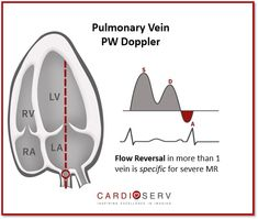 Pulmonary Veins for MR