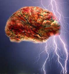 #Lamictal to treat #Epilepsy - http://www.canadiandrugsaver.com/anti-convulsant/lamictal_156.html