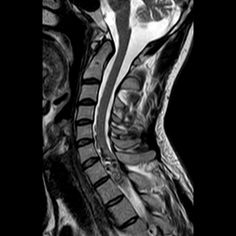 Spinal arteriovenous malformations (AVMs) are characterised by arteriovenous shunting with or without a true nidus, and includes both arteriovenous fistulae and arteriovenous malformations. Spinal AVMs may be classified as intramedullary and extramedullary (80%) 1 and further divided into 4 angiographic types, with additional sub types 2-3 (please refer to spinal AVM classification). http://radiopaedia.org/articles/spinal-arteriovenous-malformations