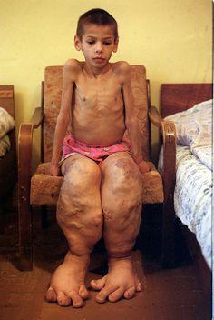 Birth deformity caused by radiation exposure. Chernobyl Children International.