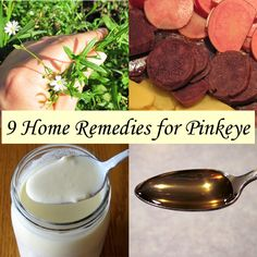 9 Home Remedies for Pinkeye - Use the Pantry Instead of the Pharmacy