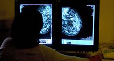 """Breast cancer screening 'overrated', say scientists 