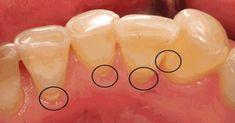 Voici un truc ULTRA-GÉNIAL que votre dentiste ne veut pas que vous sachiez! - Astuces & Blagues