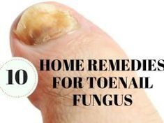 Remedies For Skin 10 Simple and Natural Home Remedies for Toenail Fungus - If you would like to stay away from drugs and try some safe natural foot fungus remedies, look no further. Try these natural cures for nail fungus to fix your problem forever. Toenail Fungus Remedies, Toenail Fungus Treatment, Allergy Remedies For Kids, Vicks Vapor Rub, Toe Fungus, Fungus Toenails, Natural Home Remedies, Natural Treatments, Home Remedies