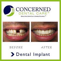 #beforeandafter #dentalimplants #smile