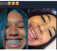 Me and my BESTIE❤️ made appointments to get braces the same dayyy! Cute Braces Colors, Cute Girls With Braces, Dental Braces, Teeth Braces, Dental Care, Braces And Glasses, Braces Retainer, Braces Tips, Getting Braces