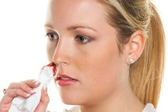 Hausmittel gegen Nasenbluten