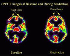 Um cérebro treinado