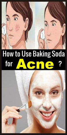 Face Errors – Beauty Tips … Baking Soda Face Scrub, Baking Soda For Acne, Baking Soda Bath, Baking Soda Cleaning, Baking Soda Shampoo, Baking Soda Uses, Dry Out Pimples, Vitamins For Healthy Hair, Baking Soda Benefits