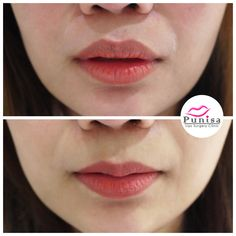 #Punisaclinic #ศัลยกรรม #ปาก #ศัลยกรรมปาก #ปากบาง #ปากกระจับ #ปากปีกนก  #Beauty #Number1 #Lips #LipReduction #LipSurgery #Professional #Lip #Reduction #Surgery #Thailand #plasticsurgery #lipreductionsurgery #thailand #doctorthinlips#Punisaclinic #lipsurgery #lipreduction#lipreductionsurgery #asianlips #plasticsurgeons#plasticsurgery #Thailandsurgery Lip Surgery, Thin Lips, Lower Lip