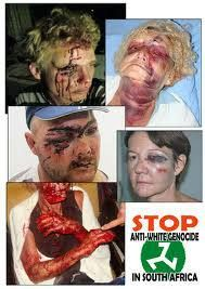 Violent ant-white attack in Pensacola Florida. Shades of South Africa? - European Knights Project