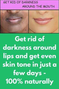 b08f4d0ef6ee93891472a8758e9ab4e4 - How To Get Rid Of Black Marks Around Mouth