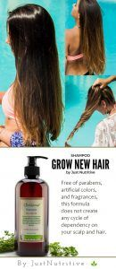 This shampoo can help remove obstacles that impede hair from being its growing. Each of its ingredients is a unique source of hair stimulants and hair accelerators. Skin Tags Home Remedies, Getting Rid Of Dandruff, Cool Braid Hairstyles, Pretty Hairstyles, Fuller Hair, Natural Hair Styles, Long Hair Styles, Prevent Hair Loss, Hair Hacks