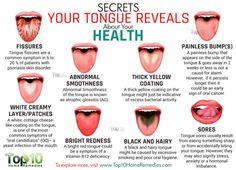 Tongue Health Diagnosis Lots Of Pinnable Charts | The WHOot