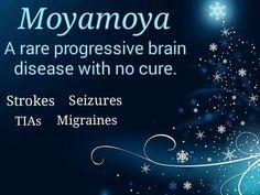 Moyamoya Awareness #moyamoya