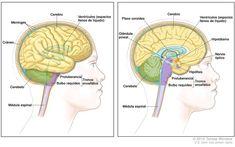 Anatomía del encéfalo; un dibujo de dos paneles muestra el cerebro, los ventrículos (espacios llenos de líquido), el cerebelo, el tronco encefálico (protuberancia y bulbo raquídeo) y la médula espinal. También se muestra las meninges y el cráneo (panel izquierdo) y el plexo coroideo, el hipotálamo, la glándula pineal, la hipófisis y el nervio óptico (panel derecho).