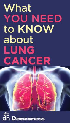 Lung Cancer: Still the Biggest Cancer Killer, by Far