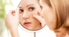 Avoid using harsh chemicals that burn and irritate your skin. Learn about natural remedies for acne and acne scars like ozonated olive oil. beauty tricks and tips Gesicht Mapping, Glycolic Acid Cream, Lactic Acid, Acne Treatments, Drooping Eyelids, Face Mapping, Pimple Popping, Vinegar