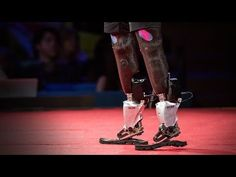 Hugh Herr: The new bionics that let people run, climb and dance.  TED talk.