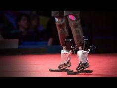 Hugh Herr: The new bionics that let people run, climb and dance.  TED talk.