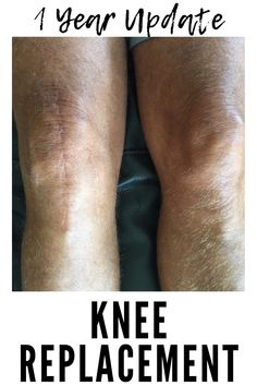This is my update for 1 year after knee replacement. You can learn from my experience, the things I did right and what I could have done differently to prepare and recovery from TKR. Knee Replacement Complications, Knee Replacement Recovery, Knee Replacement Surgery, Knee Surgery Recovery, Knee Pain Exercises, Knee Arthritis, Knee Injury, Injury Prevention, Foam Rollers