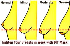 Tighten Your Breasts in Week with This Home Remedy » FireUpFitness