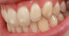 Fluorosis Dental, Dental Hygiene, Treats, Fruit, Tips, Vegetables, Tooth Enamel, Dental Fluorosis, Acidic Foods