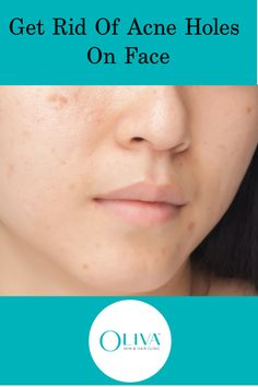 One Thing Top Dermatologists Say About Acne Holes How To Remove Pimples, Remove Acne, How To Get Rid Of Acne, Pimple Scars, Acne Scars, Stretch Mark Removal, Stretch Marks, Acne Holes, Skin And Hair Clinic