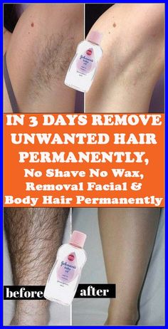 REMOVE UNWANTED HAIR PERMANENTLY IN THREE DAYS, NO SHAVE NO WAX, REMOVAL FACIAL & BODY HAIR PERMANENTLY Underarm Hair Removal, Back Hair Removal, Electrolysis Hair Removal, Hair Removal Methods, Hair Removal Diy, Permanent Facial Hair Removal, Remove Unwanted Facial Hair, Unwanted Hair, How To Remove