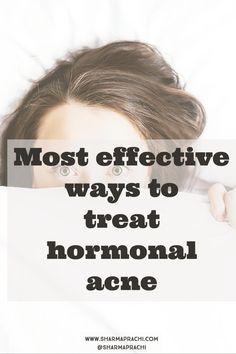 How I cleared my skin of hormonal acne in Japan: Benzoyl peroxide, Epiduo, Nadifloxacin, vitamin-c/b Benzoyl Peroxide, Feeling Insecure, Hormonal Acne, Radiant Skin, Perfect Skin, Lotion, Healing, Japan, Lotions