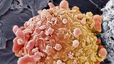 Pair of drugs eliminate 20% of tumours