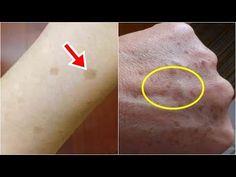 「老年斑」出現了別擔心,2個小動作讓你告別老年斑,重回年輕! - YouTube Brown Spots On Skin, Youtube, Brown Patches On Skin, Youtubers, Youtube Movies