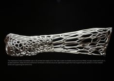 "engineeringisawesome: "" Some more information on the 3D-Printed cast. futuretechreport: "" Cortex: The 3D-Printed Cast After many centuries of splints and cumbersome plaster casts that have been the..."