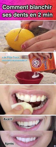 Pas la peine de frotter comme un malade car ça ne changera rien. Pas la peine non plus de dépenser une fortune dans les kits de blanchiment dentaire. Alors que faire ?