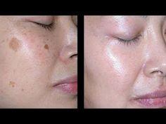Wie du Flecken im Gesicht innerhalb kürzester Zeit los wirst! - YouTube