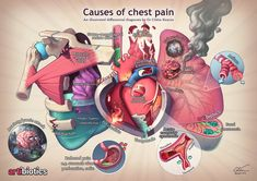"""An illustrated differential diagnosis for the causes of chest pain, by Dr Ciléin Kearns (Artibiotics). Part of my """"Medical Mentalism"""" series. Nursing Student Tips, Nursing School Notes, Nursing Students, Cardiac Nursing, Nursing Mnemonics, Nursing Assessment, Medical Pictures, Human Anatomy And Physiology, Medical Anatomy"""