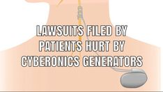 Epilepsy and depression patients treated with a Cyberonics VNS Therapy System who suffered complications involving a Model 106 Generator have filed lawsuits against the company. Product Liability, Epilepsy, In Law Suite, Filing, Depression, It Hurts, Therapy, Model