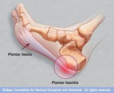 #Plantar #fasciitis is an inflammation of the fibrous tissue (plantar fascia) along the bottom of your foot that connects your heel bone to your toes. Plantar fasciitis can cause intense heel pain.