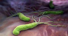 Conoce cuál es la receta natural y casera que te ayudará a combatir la bacteria del Helicobacter Pylori... con ingredientes naturales!!!