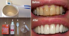 Plaque is a sticky, colorless film of bacteria that builds up on the teeth and along the gum line. This is the major cause of tooth decay, gum inflammation and other teeth problems. Fortunately, there is a simple and effective remedy which can help you get rid of plaque and tartar without going to your …