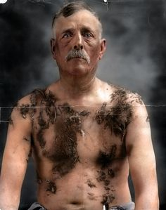 John Meintz was tarred and feathered in 1917 for supposedly not supporting war bond drives, he later sued the men involved and settled out of court in 1922