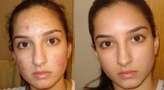 Everyone wants to get rid of acne scars fast. Now the question is How to get rid of acne scars fast? Some Natural Ways to Remove Acne Scars is given below : Back Acne Treatment, Acne Treatments, Acne Hormonal, Laser Acne Scar Removal, How To Get Rid Of Pimples, Acne Solutions, Remove Acne, Masks