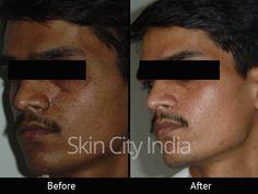 Skin City India - Fairness Treatment
