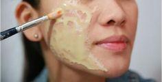 Eliminar cravos, rugas e marcas no rosto é o desejo de muita gente, principalmente das mulheres.Uma pele lisinha, sem manchas, enrugamentos ou cicatrizes de espinhas passa uma boa imagem e garante o nosso bem-estar.
